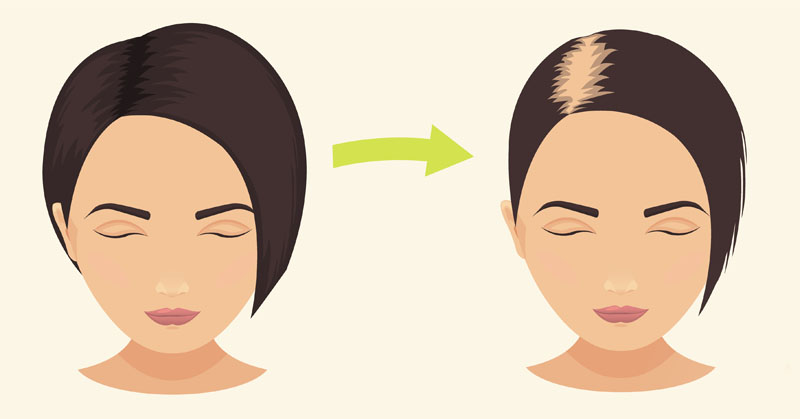 PCOS Related Hair Loss