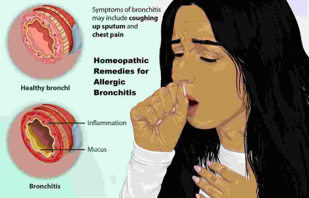 Homeopathic Remedies For Bronchitis.